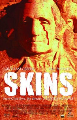 "45. ""Skins"" con Born In The U.S.A.Regia di Chris Eyre, USA 2002"